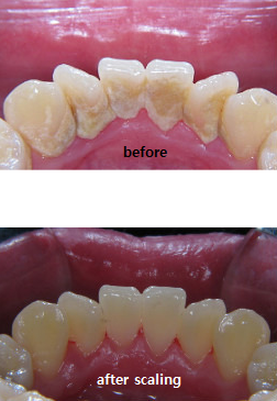 cancer | Dr.Park' s Orthodontics